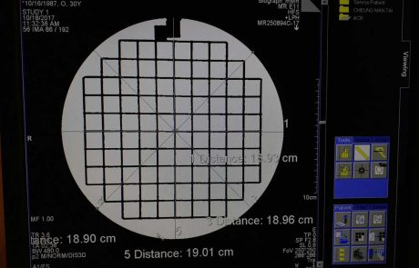 Geometric accuracy of MRI Scanner